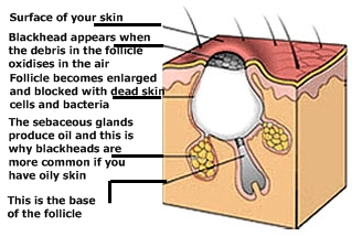 diagram of blackhead