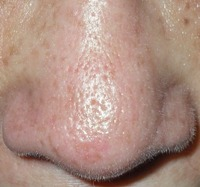 large pores on face