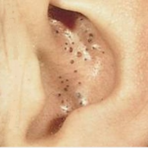 large blackheads in ear