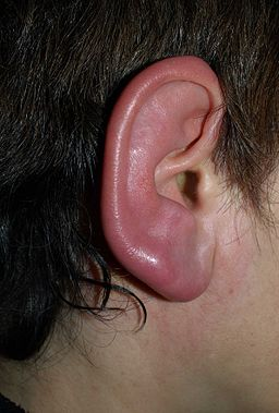 Erysipelis on Ear Lobe