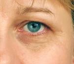 under eye puffiness