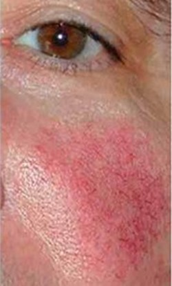 How to get rid of face redness naturally